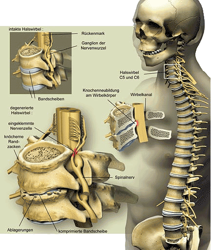 Cervical Spine (Picture: www.GEO.de – © Joe Lertola)