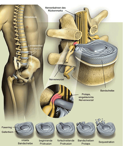 Spinal Disc Herniation (Picture: www.GEO.de – © Joe Lertola)